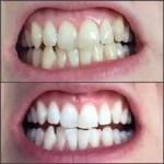 Teeth whitening Medellin dentist