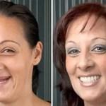 new fix dentures abroad