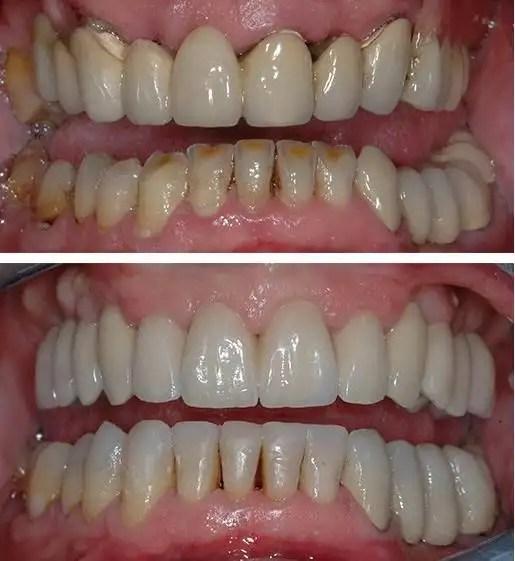 Dental bridge Medellin before after