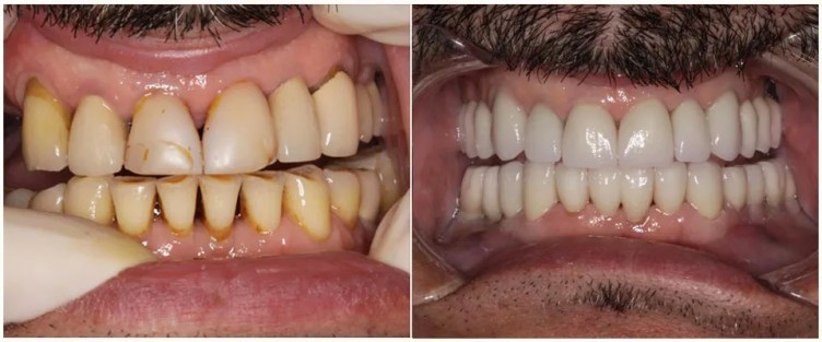 Full mouth reconstruction before after