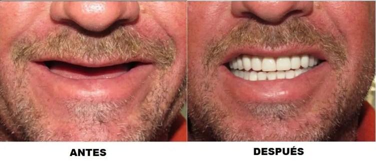 Dental implants before after Medellin Colombia