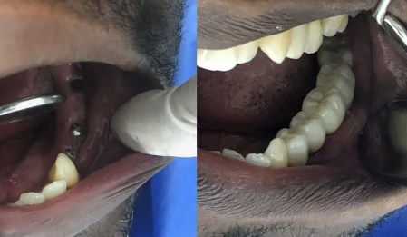 Dental-implants-abroad-Colombia-before-after