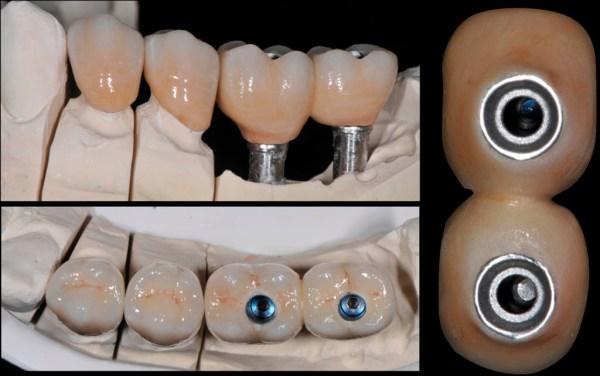 Restaurarea protetică finalizată pe model (vedere vestibulară și ocluzală) și aspectul dinspre fața mucozală