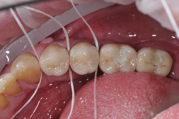 Verificarea ariilor de contact interproximale cu ața dentară