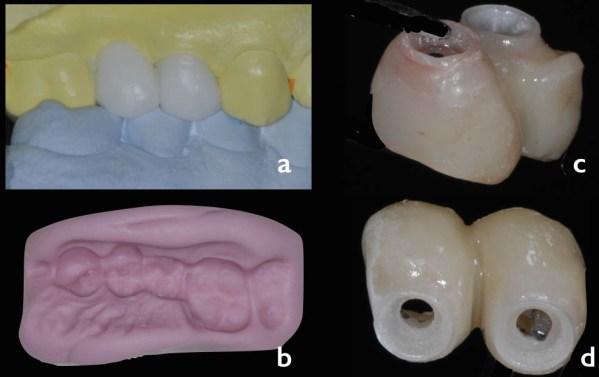 a, b, c, d. Restaurarea provizorie înșurubată obținută cu ajutorul indexului din silicon chitos, realizat pe modelul cu wax-up