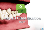 Angle's Classification Quiz