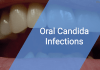 Oral Candida Infections