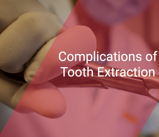 Complications of Tooth Extraction