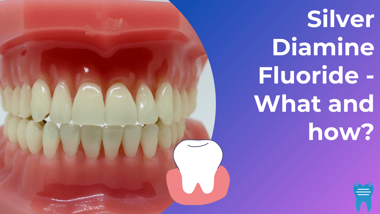Silver Diamine Fluoride (SDF) – What is it and How do you use it?