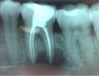 Dental Radiograph - Periapical Radiograph