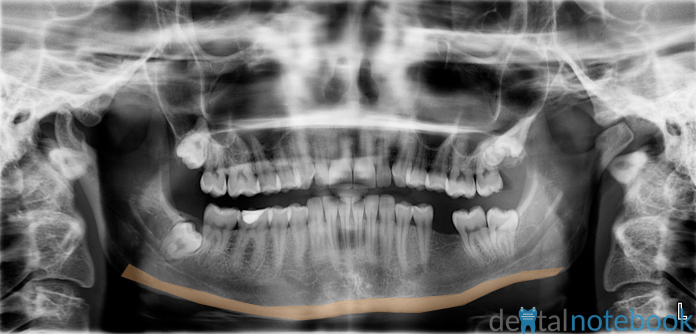 Lower border of the mandible