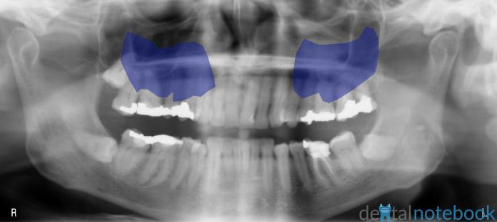 Maxillary Sinuses