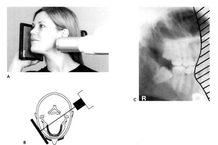 Oblique Lateral Radiograph