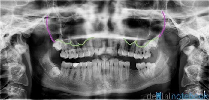 Maxillary sinus walls