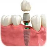Zubni implantat, suprastruktura i krunica