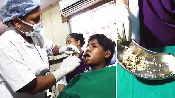 medicina-ashik-gavai-dentes-20140723-002-size-598