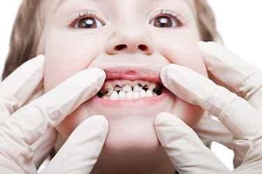 baby cavity prevention