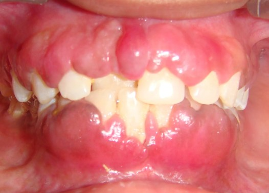 gingival enlargement