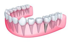 dental-implant-procedures