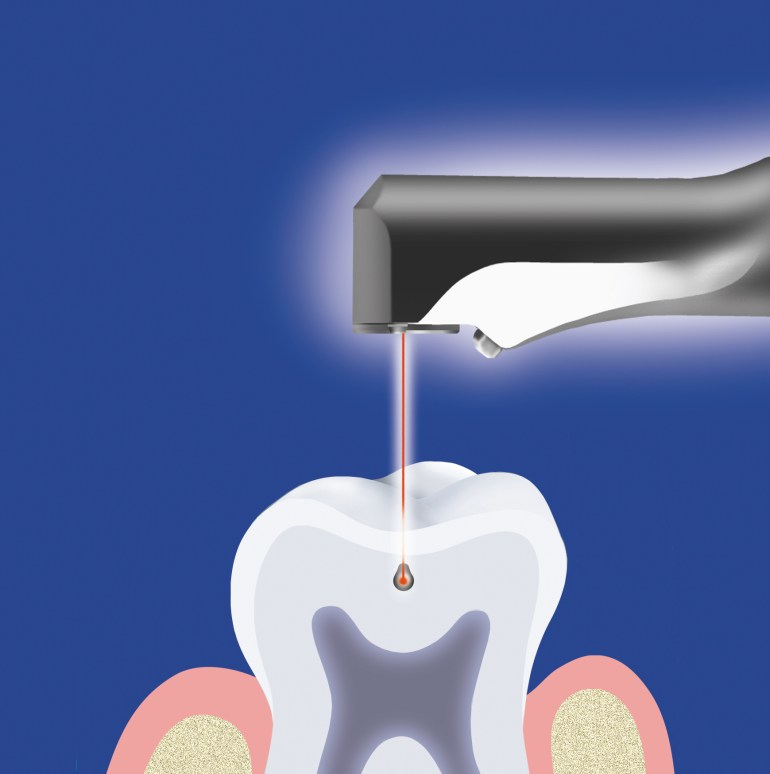 lasers in conservative dentistry