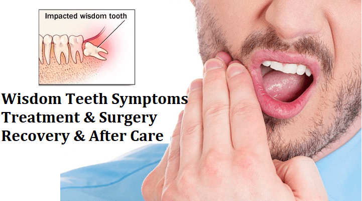 wisdom teeth surgery and treatment