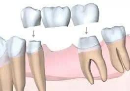 """Résultat de recherche d'images pour """"bridge dentaire dentoporté"""""""