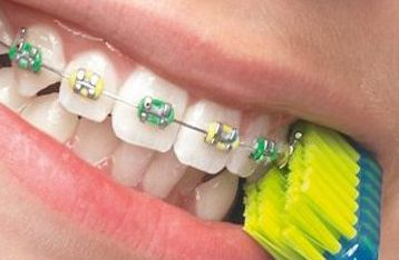 Curaprox CS 5460 orthodontie
