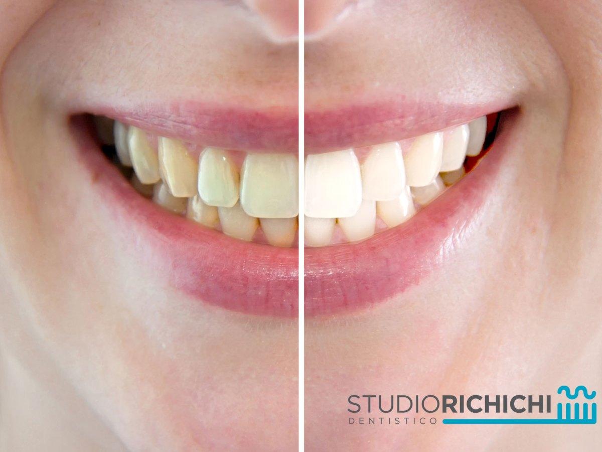 nuova versione Scarpe 2018 nessuna tassa di vendita Lo Sbiancamento dei Denti vitali - Studio dentistico Richichi