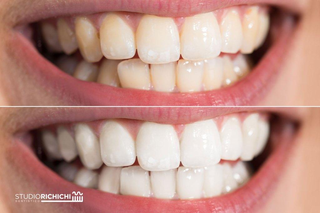 Faccette dentali in ceramica