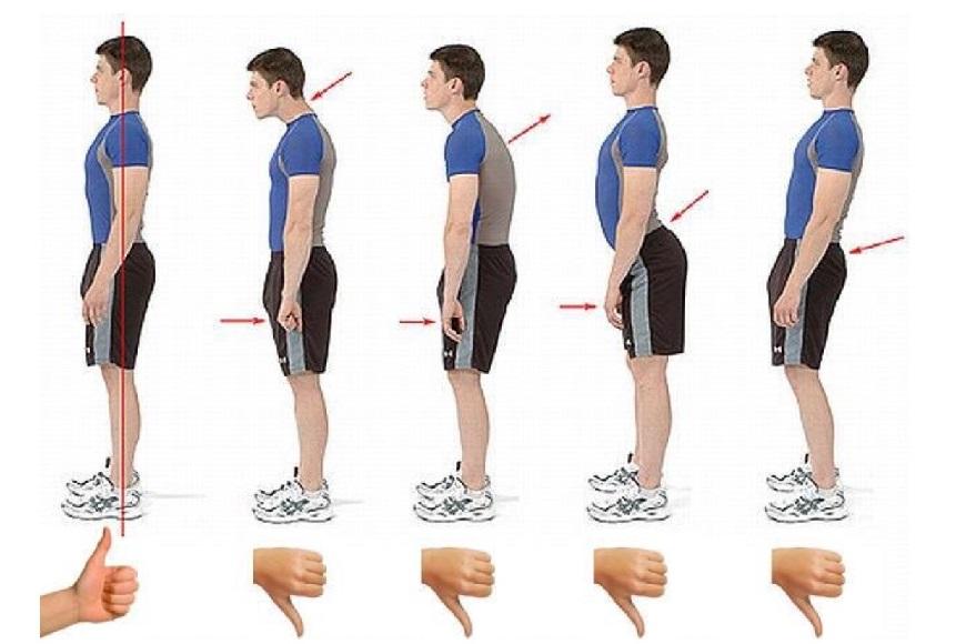 postura e denti
