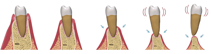 dental-implant-bone-loss1