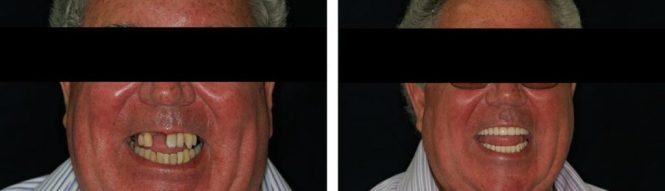 implantologia30