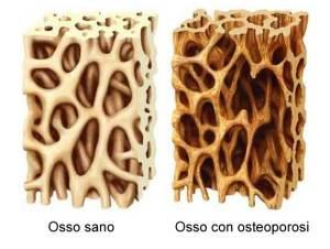 osteoporosi-implantologia