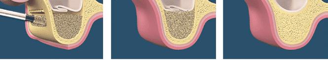 sinus-lift-procedure2