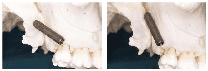 impianti-pterigoidei