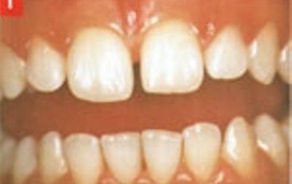 Traitement diastème facette dentaire blog