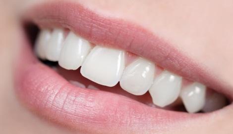 Blanchiment dens dentiste richard amouyal