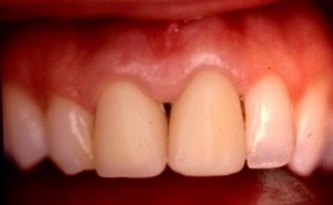 dents provisoires