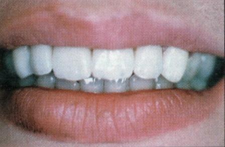 facettes dentaires céramique dentiste richard amouyal paris 16