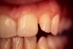 Correction d'une anomalie de forme et de position des dents par facette en céramique