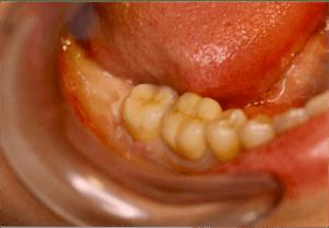Inlay onlay posé sur la dent