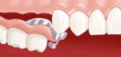 Prothèse dentaire amovible