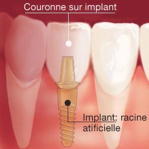 Couronne sur implant dentaire dentiste richard Amouyal