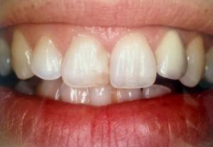 dentiste amouyal paris 16 dents jaunes r paration par facette. Black Bedroom Furniture Sets. Home Design Ideas