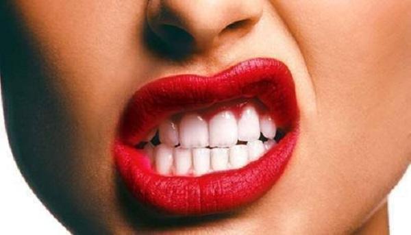 Déchaussement dentaire Paris 16