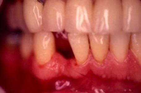 Remplacement incisive bridge dentaire paris 16