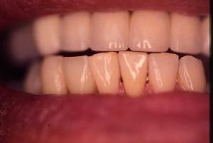Bridge dentaire intégré à la gencive