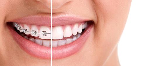 Orthodontie dentiste Amouyal Paris 16