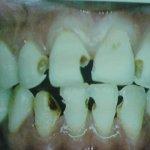 Terrible Teeth Before