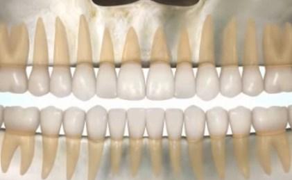 乳牙換牙順序